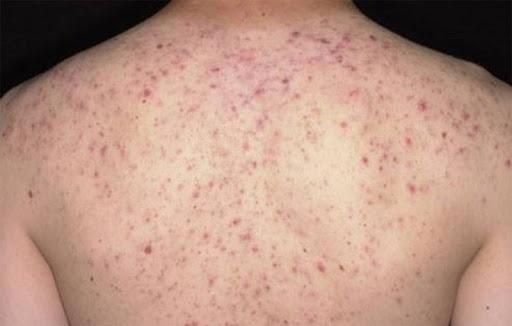 bệnh viêm chân lông
