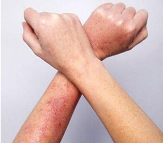 cách chữa viêm nang lông ở tay như thế nào