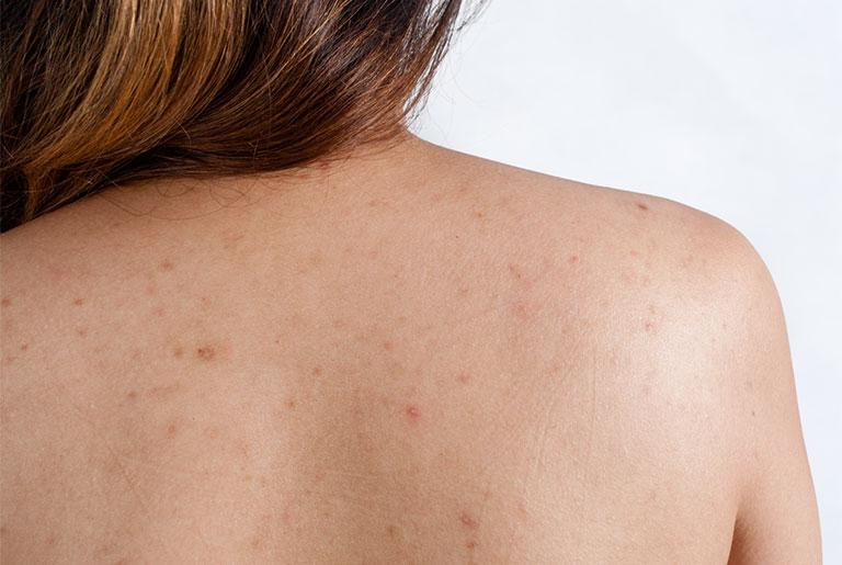 Cách trị viêm nang lông ở lưng bằng muối